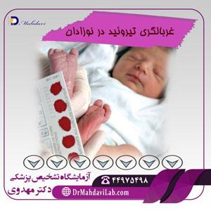 غربالگری تیروئید در نوزادان